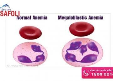Tìm hiểu về bệnh thiếu máu hồng cầu to