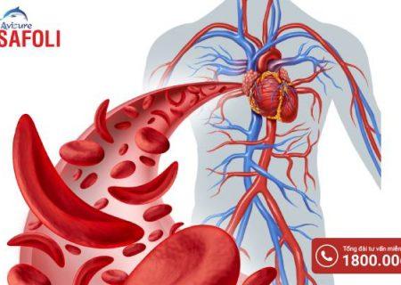 Thiếu máu hồng cầu hình liềm liệu có gây nguy hiểm không?