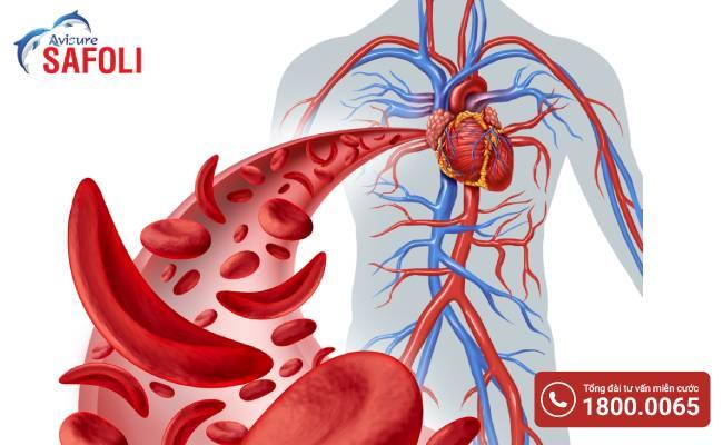 Hồng cầu hình liềm gây nguy cơ đột quỵ